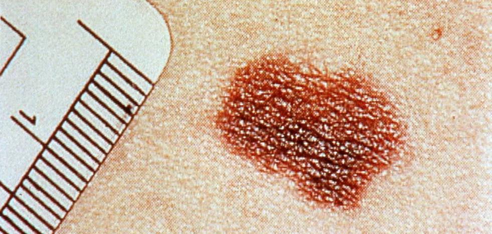 Investigadores del CNIO descubren cómo se activa la metástasis en un melanoma