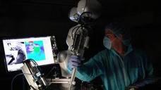 Una cirujana inglesa encuentra 17 lentillas en el ojo de una paciente