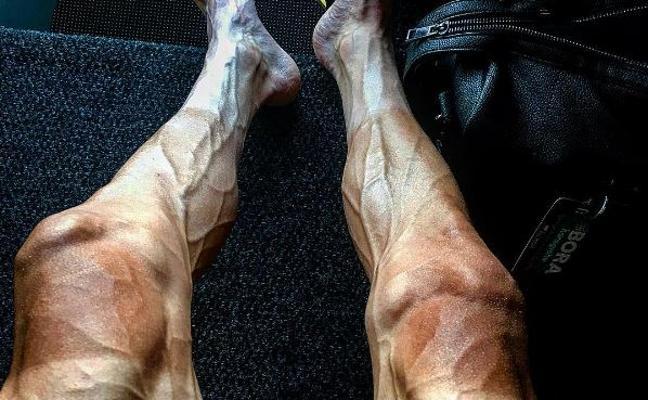 Así quedan las piernas de un ciclista tras una etapa del Tour