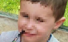 Muere de septicemia un niño de seis años al que los médicos enviaron varias veces a casa