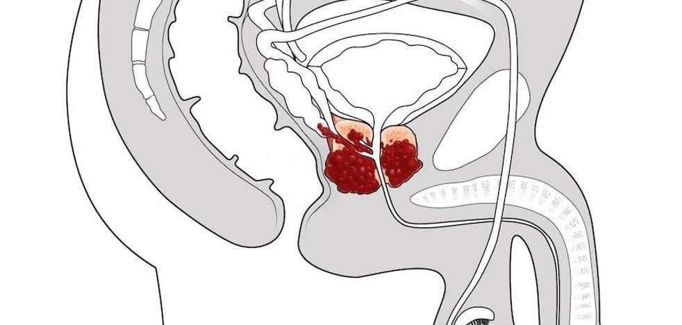 Algunos nervios impulsan el cáncer de próstata