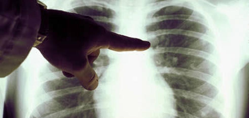 Las muertes por cáncer de pulmón en mujeres se triplican en 20 años