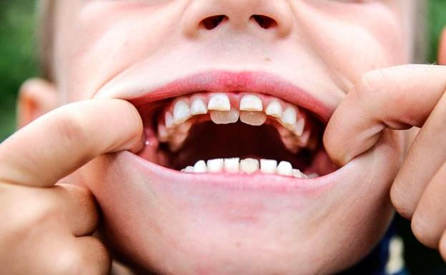 has oído hablar de los niños con dientes de tiburón el norte de