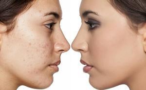 El 45% de las mujeres «siguen mostrando signos de acné pasados los veinte años»