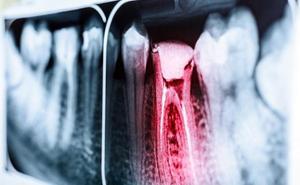 Un odontólogo vallisoletano deberá pagar 95.000 euros a una mujer que perdió sus dientes