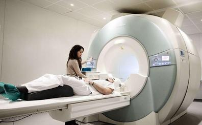 Un dispositivo implantado en el cerebro podría detectar, detener y prevenir ataques epilépticos