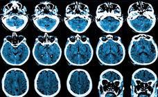 Investigadores descubren el secreto de la «inmortalidad» del cáncer cerebral