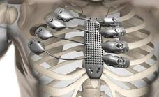 El hospital de Salamanca reconstruye la caja torácica de dos pacientes con impresión en 3D