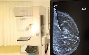 El Hospital de Segovia estrenará un segundo mamógrafo digital