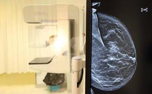 Quince mamógrafos se suman al equipamiento de Sacyl gracias a la Fundación Amancio Ortega