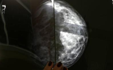 La inteligencia artificial se adelanta al cáncer de mama