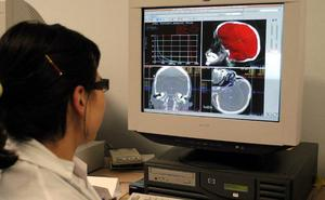 Sale a licitación la redacción del proyecto para la implantación de la radioterapia en Ávila