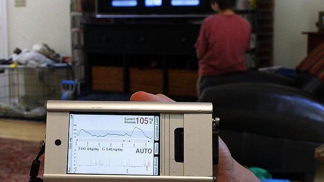 Apple, Google y Samsung invierten en la medición de glucosa