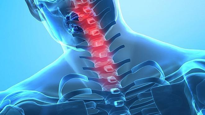 La causa de la escoliosis idiopática podría ser neurológica
