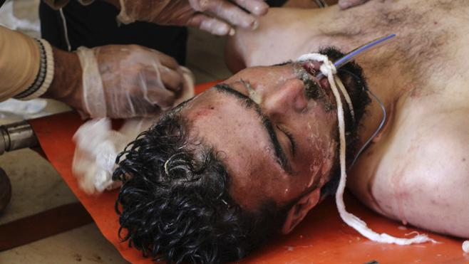 La ONU califica de «crimen de guerra» el ataque químico en Siria